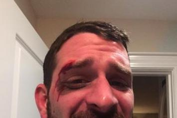 Grown Man Busts His Face Trying To Find Tom Brady's Autographed Ugg Slippers